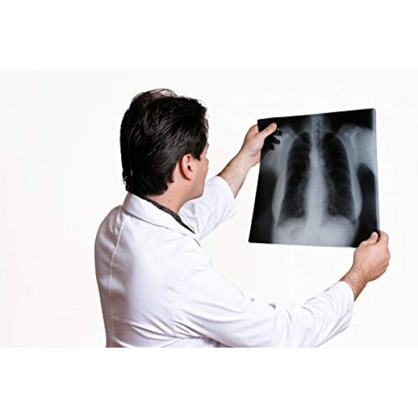 VMS HI-Speed conventional Xray Medical Film Blue Base Sensitive 12'' X 15'' (50 Sheets X-Ray Film for X Ray Imaging)